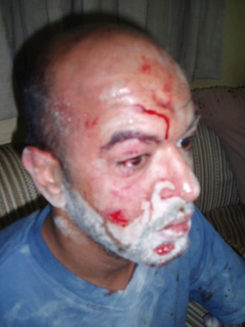 Bahraini citizen S. Abbas who was beaten, his head was kicked and hit against the ground by Foreign Special Security Forces