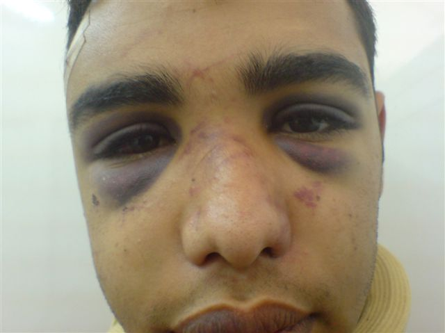 Bahraini citizen beaten severely, used as human shield