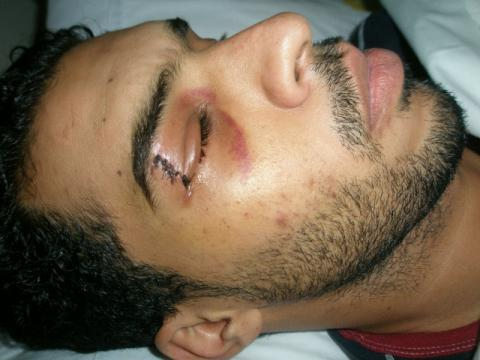 Urgent Appeal:A Bystander gets shot in his eye with a rubber bullet