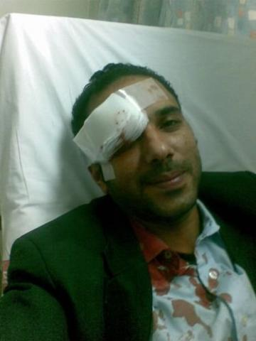  Al-Murshed hit by a rubber bullet 27 Jan 2008